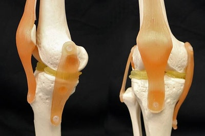 3D printable implants may ease damaged knees