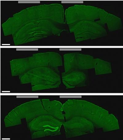 A noninvasive method for deep brain stimulation