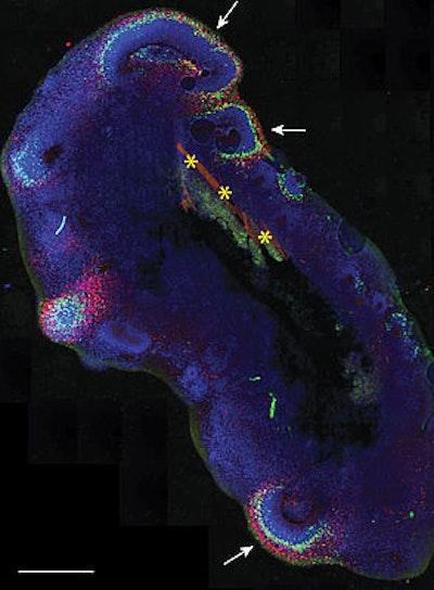 A bioengineered upgrade for organoids