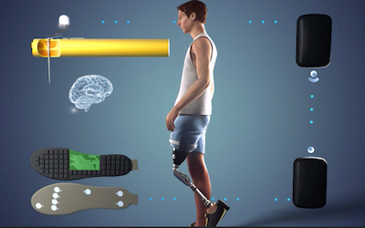 Sensars Neuroprosthetics grabs government funding for disruptive tech