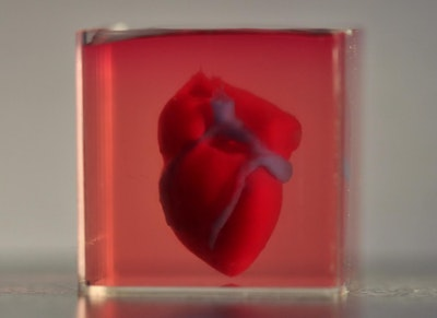 First 3D printed heart using patient's biological materials