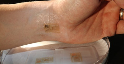 Regulation and reimbursement for electronic skin patches