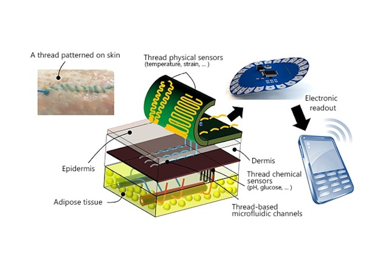 Smart Sensors Can Be Sutured Into Tissue Printed