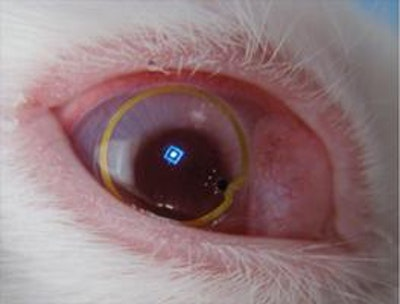 Progress with energy harvesting contact lens displays