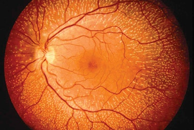 First self-powered artificial retina