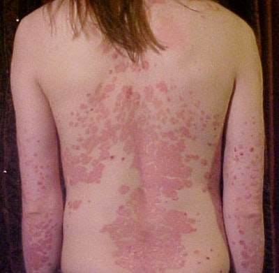 First effective use of bioelectronics to treat psoriasis