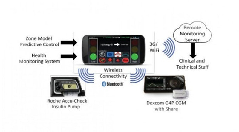 Artificial Pancreas Performs Well In Clinical Trial Global