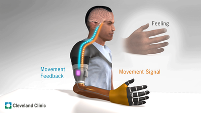 Restoring natural movement in robotic arms
