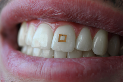 Tooth-mounted wearable can track what you eat