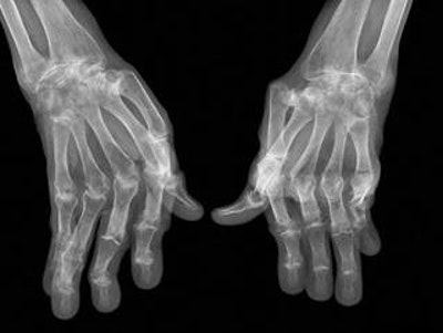 Trial of first bioelectronic device to treat rheumatoid arthritis