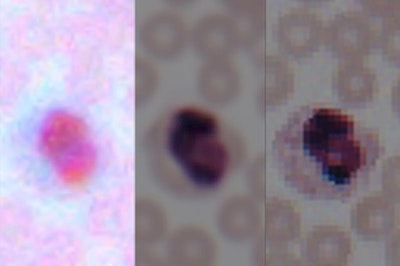 Deep learning - smartphone microscopes into laboratory-grade devices