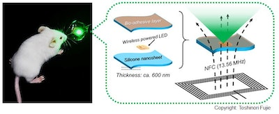 Bioadhesive, wirelessly-powered implant emitting light to kill cancer