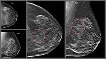 Deep learning distinguishes recalled-benign mammograms
