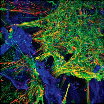 Growing functioning human neural networks in 3D from stem cells