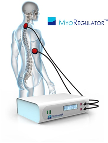 Neuromodulation for non-invasive treatment of spasticity