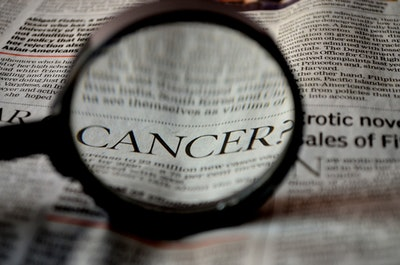 AI outperformed human experts in identifying cervical precancer