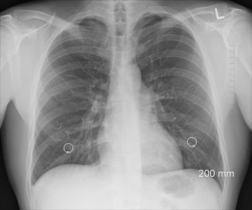 Abnormal chest X-rays quickly processed by AI