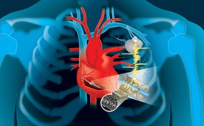 Harvesting the heart's energy to power life saving devices