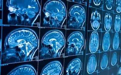 UK's first AI platform for NHS hospitals