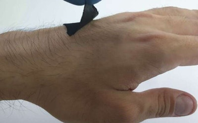 Octopus-inspired wearable sensor