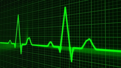 New AI technology for advanced heart attack prediction