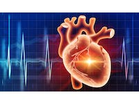 Diagnosing Cardiovascular Disease
