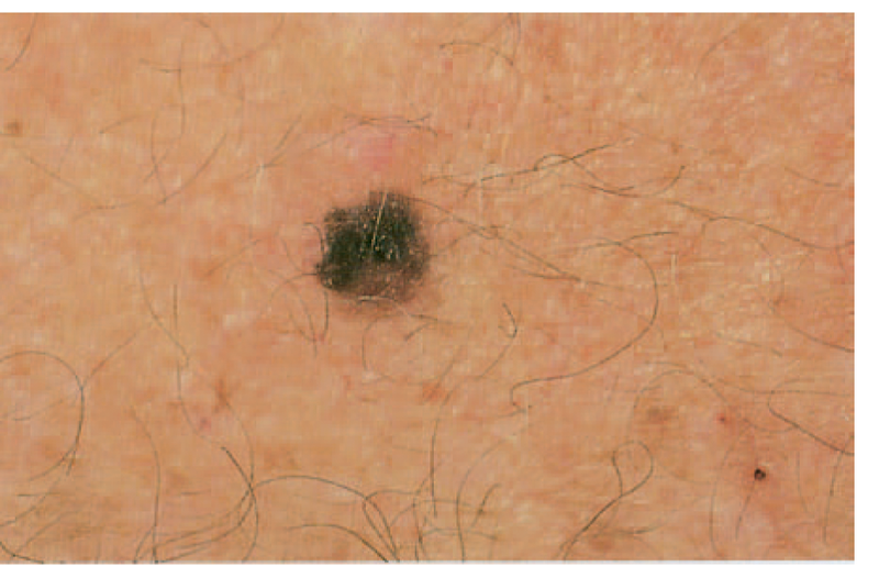 Wearable Patch A New Treatment Option For Skin Cancer Wearable Technology Insights
